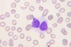 dysplasie monocyten