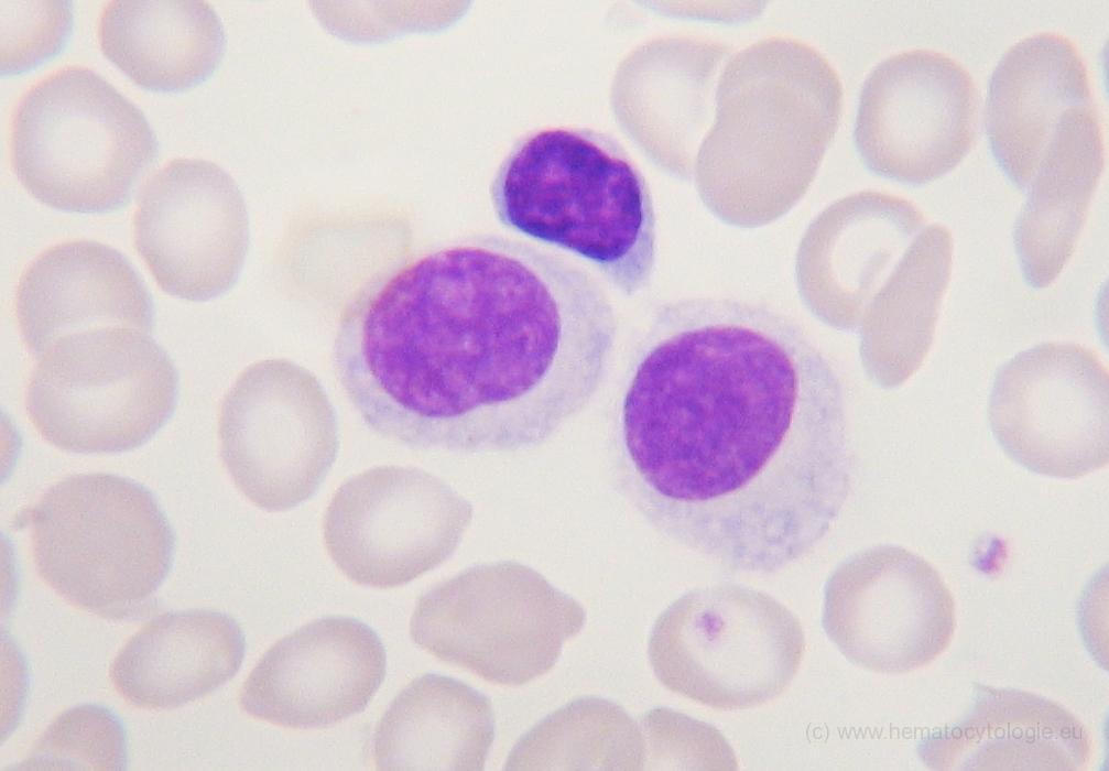 b cel lymfoom