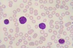 Maligne lymfocyten